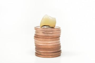 Zahnersatz auf Kleingeld