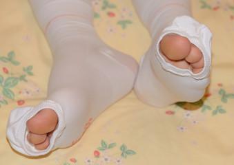 弾性ストッキングを履いた女性の足