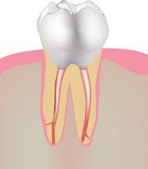 molare con radice