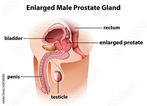Enlarged male prostate gland