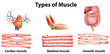 Types of muscle