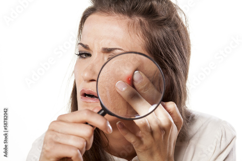 girl squeezing her pimples using magnifying glass