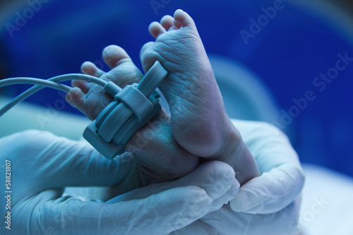 Doctor's hand care for a sick new born baby in the pediatric ICU