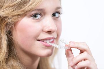 Schönes Mädchen beim Einsetzen einer Zahnspange