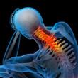 3d rendered illustration - pain neck