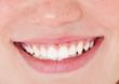 Gepflegte Zähne