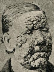 Leprosy patient
