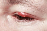 Chalazion and Blepharitis. Sore Red Eye. Sickness