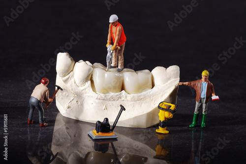 Leinwandbild Motiv 3 Miniatur Arbeiter auf Zahn Ersatz