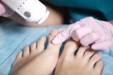 Woman receiving laser treatment on her feet