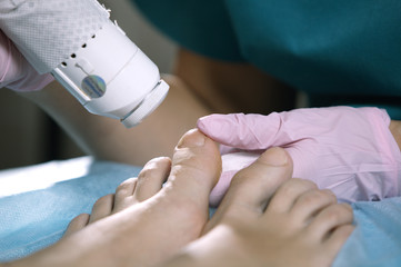 Podiatrist treating onychomycosis with a laser