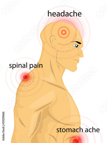 Human body with pain dots