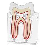 cartoon image of tooth cut