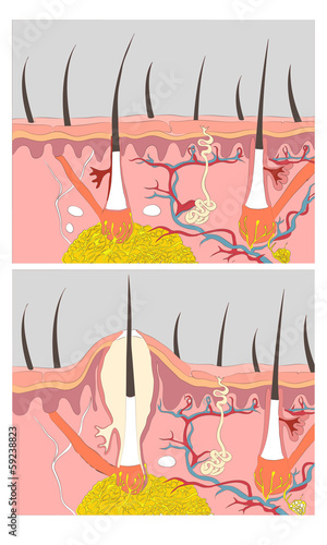 Anatomy of Acne