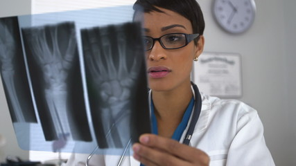 Doctor looking at x-rays of broken wrist