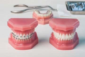 dentures and braces