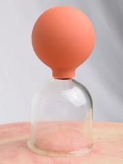 Schröpfglas 02
