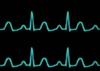 Digital cardiogram. close-up photo.