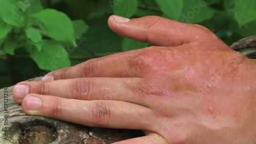 Nettle sting on a hand. Close-up
