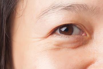 Wrinkles under eye