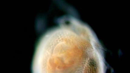 daphnia closeup and infusoria under microscope