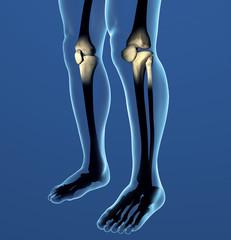 Ginocchia raggi x ossa dolore corpo umano