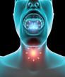 Mal di gola infiammazione arrossamento dolore, pastiglia e cura