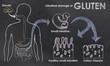 Intestinal Damage of Gluten - 60075481
