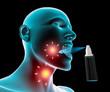 Mal di gola infiammazione dolore, spray nebulizzatore alito