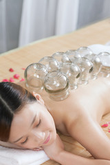 .A Chinese medicine cupping of the young lady.
