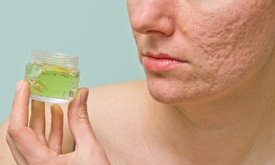 Problematic skin treatment