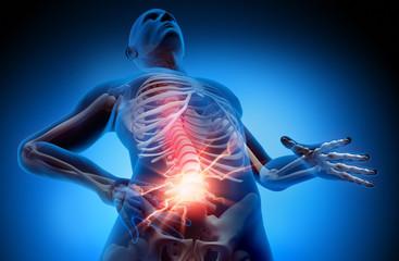 Rückenschmerz 1