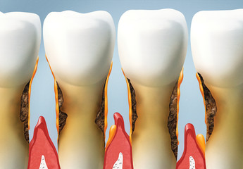 treat your teeth, periodontal