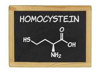 chemische Strukturformel von Homocystein auf einer Schiefertafel