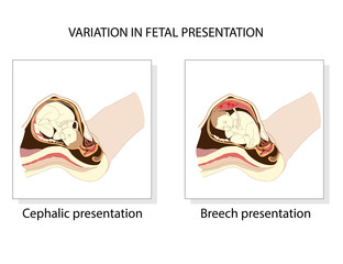 Variation in  fetal presentation.  Pregnancy