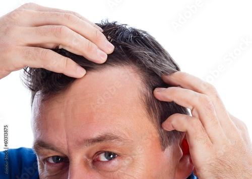 Androgenic Alopecia - 60313875