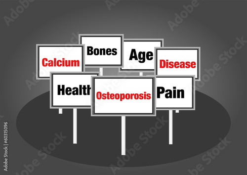 Osteoporosis signs