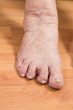 damaged toes of a senior person