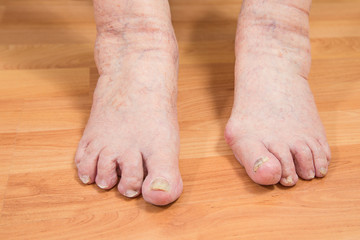damaged toes