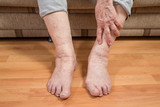 damaged toes and wrinkled hand