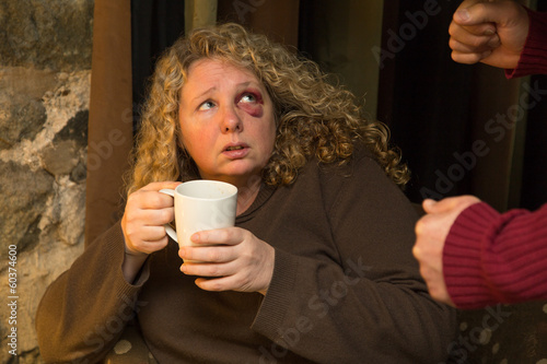Fearful woman with black eye