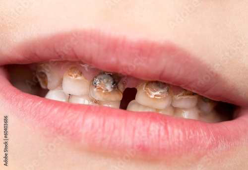 Dental medicine and healthcare - human patient open mouth
