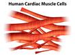 Human cardiac muscle cells