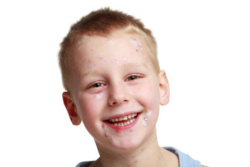 Little boy with chickenpox
