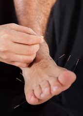 Man Getting Acupuncture Therapy Treatment