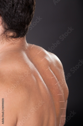 Man With Acupuncture Needles On Back