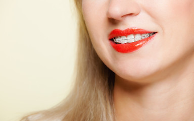 Part of female face. Smile. Teeth straighten, tooth hygiene