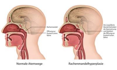 Rachenmandelhyperplasie, adenoide verformung deutsch