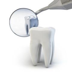 Zahn - Zahnspiegel