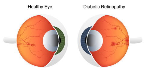 Comparison of health eye vs eye affected by diabetic retinopathy